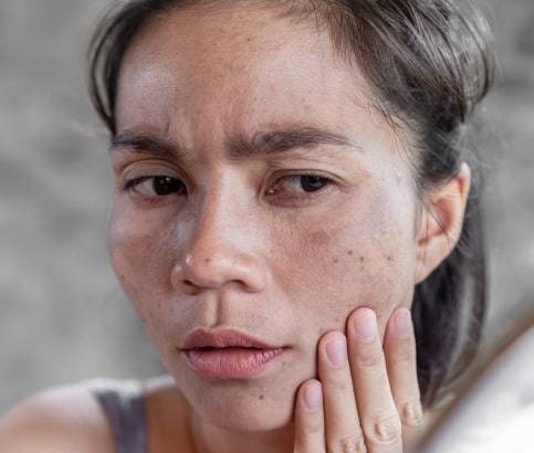 how to fix dry and dehydrated skin